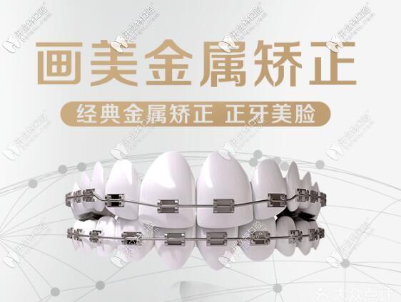 西安国产金属自锁和时代天使comfos隐形牙齿矫正价格表大全