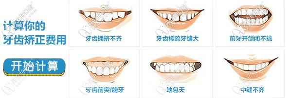 牙齿矫正的费用