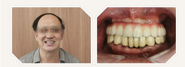 上半口没牙别戴活动假牙,在成都做4颗半口种植牙费用也不贵