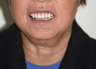 好奇60岁适合种牙还是镶牙?看看她做的all-on-6即刻负重效果吧
