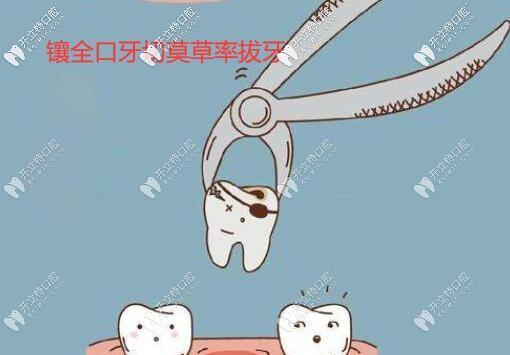 镶牙必看!全口假牙需要把满口残余的牙齿及牙根全部拔掉吗