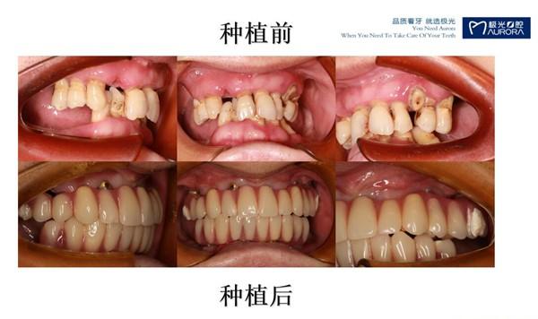 避免做全口种植牙后悔,来一波全口牙缺失种植案例供你参考