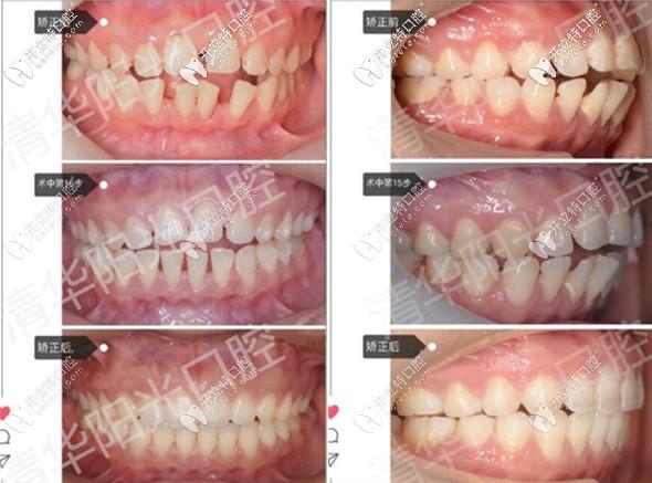 牙齿稀疏+扭转开颌,打卡武汉清华阳光口腔隐适美不拔牙矫正