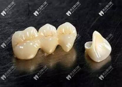 小诊所爱尔创氧化锆全瓷牙800一颗,你确定这是真的全瓷牙吗