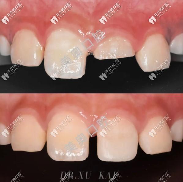 儿童乳牙断牙修复