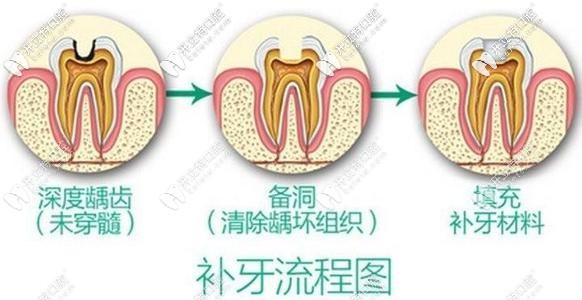 蛀牙别拖久哟!偷偷告诉你杭州做3M树脂补牙的价格在这!