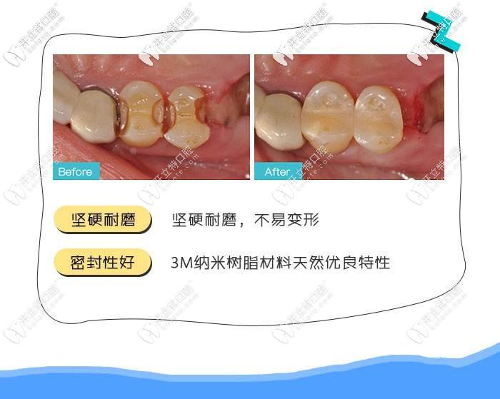 3M树脂补牙的优点