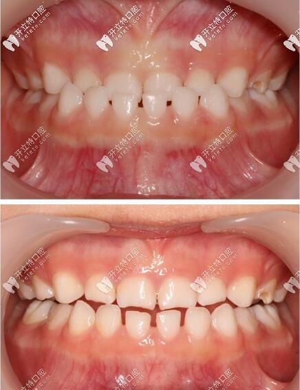 乳牙反颌苏州宝妈竟选择了比mrc价格贵的罗慕早期干预矫正