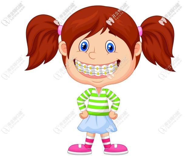 到底哪种牙套好呢