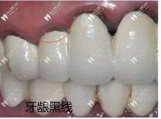 烤瓷牙基牙腐烂一摸手都是臭的,分享拆烤瓷牙的过程图片