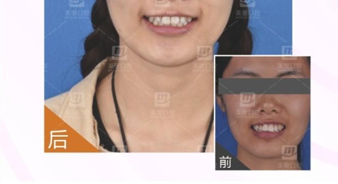 成年地包天可以矫正吗?闪现一波20岁地包天和龅牙整牙案例
