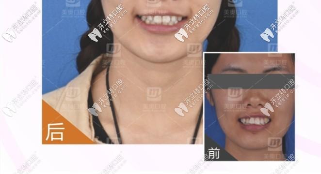 龅牙矫正牙齿前后对比图