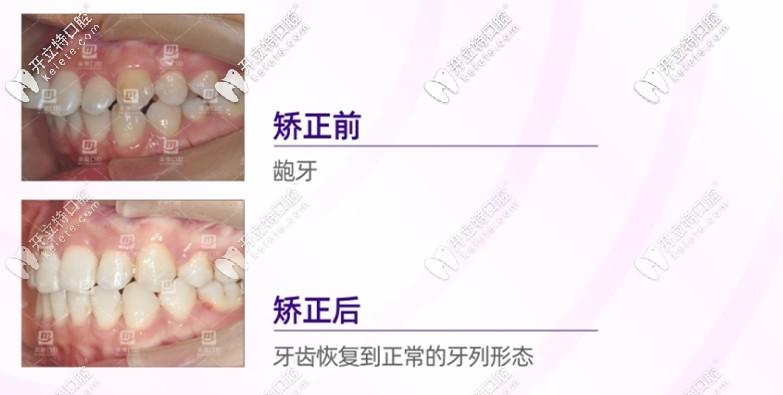 龅牙矫正口内效果