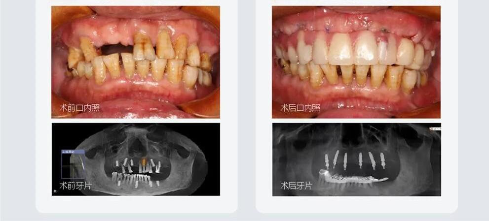 上半口无牙甭镶牙在成都做all on 6微创种植牙当天就能吃东西