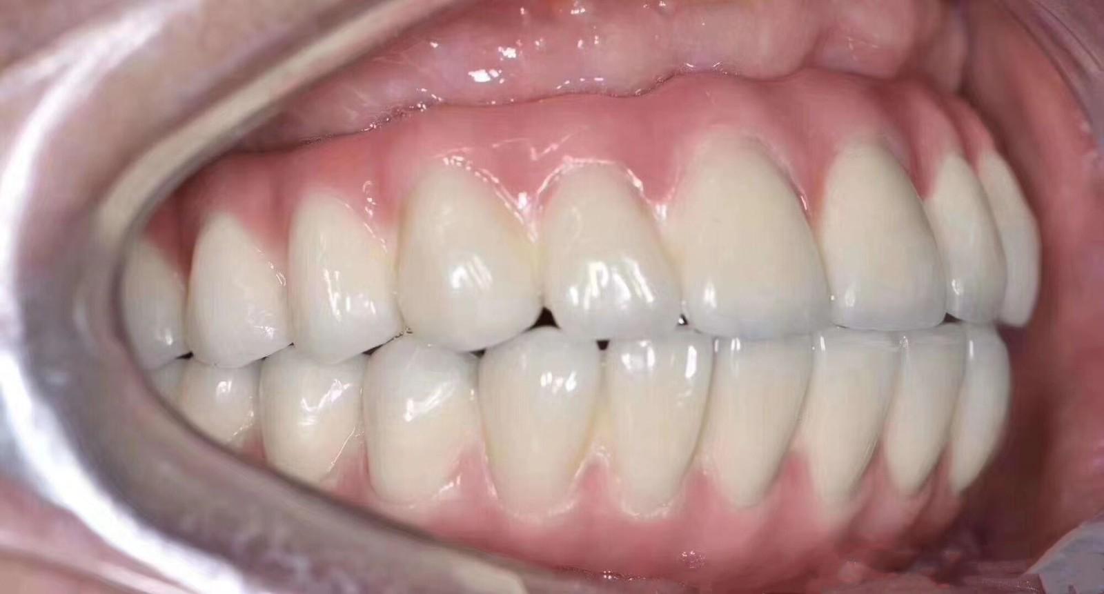 牙周病满口没牙不想活了?沈阳的全口即刻种植牙3h恢复咀嚼