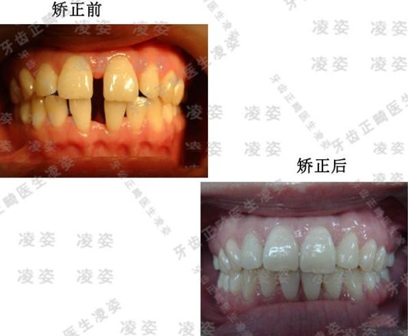 到上海圣贝口腔戴时代天使单膜,解决了4mm大的门牙牙缝问题