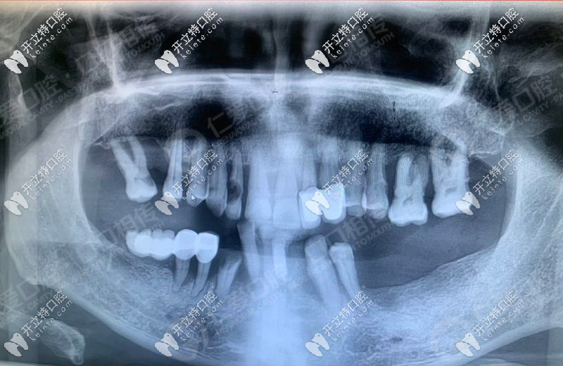 3d导板+all-on-6半口即刻负重,让武汉老人当天种植牙当天用