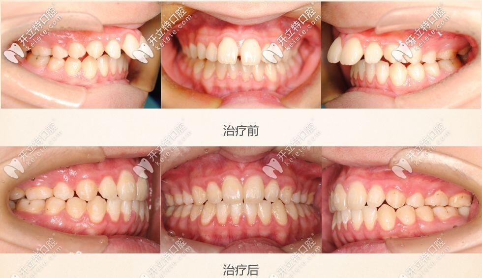 上前牙深覆盖龅牙明显矫正案例