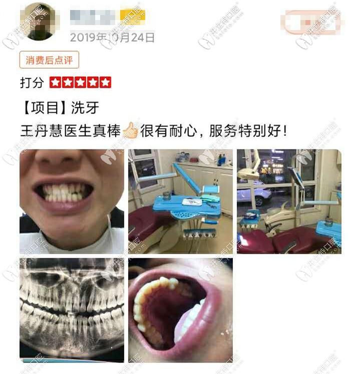 洗牙前后对比图
