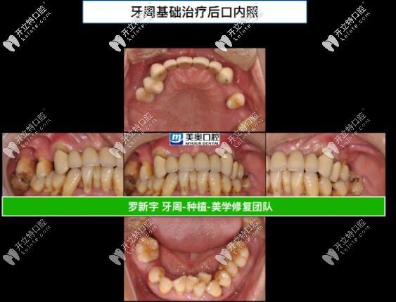 55岁重度牙周炎,成功在无锡美奥做了全口即刻负重种植牙