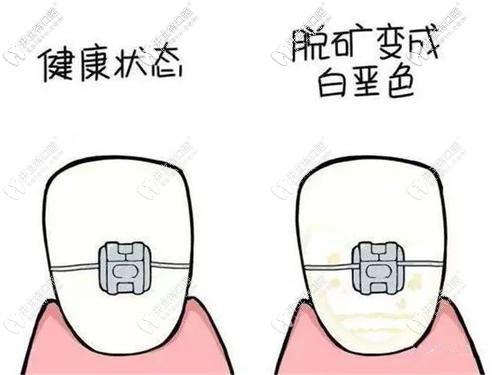 正畸后牙齿脱矿甭担心,618价格划算的牙齿冷光美白就能搞定