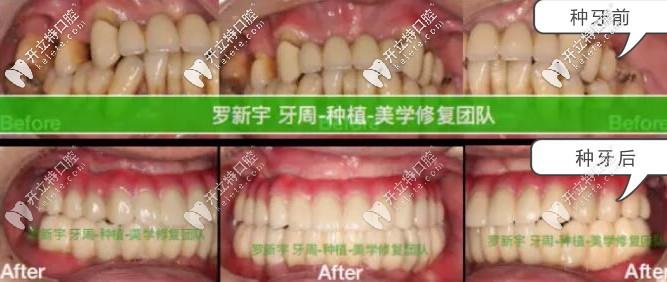 无锡美奥口腔重度牙周炎患者种牙前后对比照片