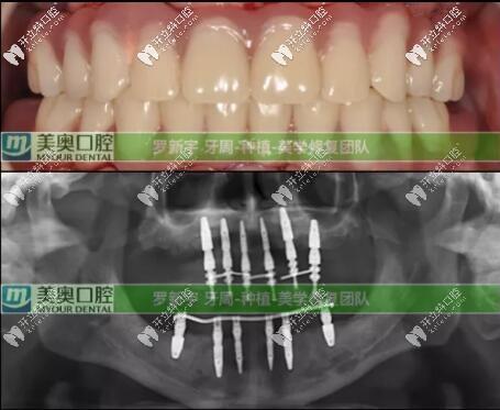 无锡美奥口腔牙周炎种植6个月后口内情况
