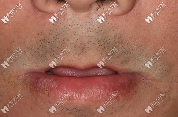 allon6上半口即刻种植牙案例,用的是瑞典诺贝尔pcc种植体