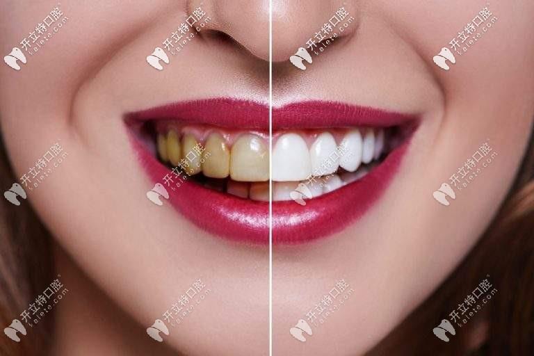 实锤|在沈阳做牙齿贴面5年没后悔,快看这瓷贴面图片和过程