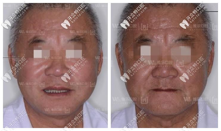 北京维乐口腔allon6全口种植牙案例前后效果对比