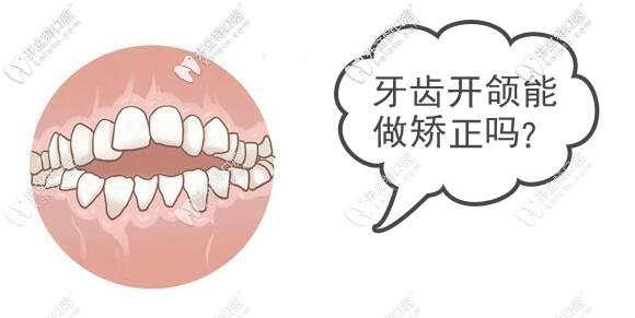这位妞牙齿开颌,戴时代天使冠军版牙套的矫正效果还挺喜人