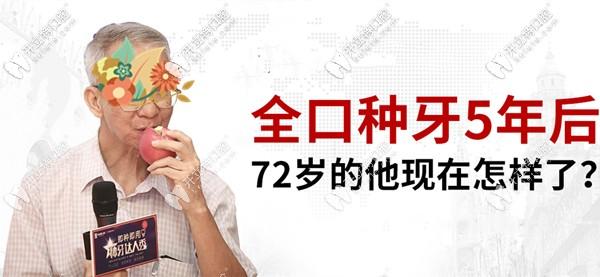 老伯在广州天河区牙科做全口allon4种植牙5年后的感受和现状