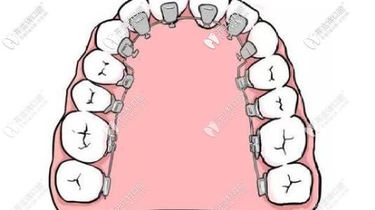 舌侧矫正对医生要求更多