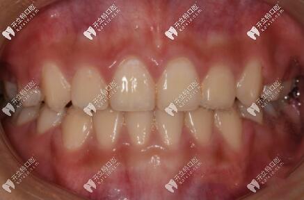 牙齿开颌在深圳五一齿科矫正后的效果