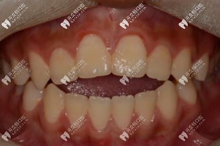 深圳五一齿科牙齿开颌矫正案例