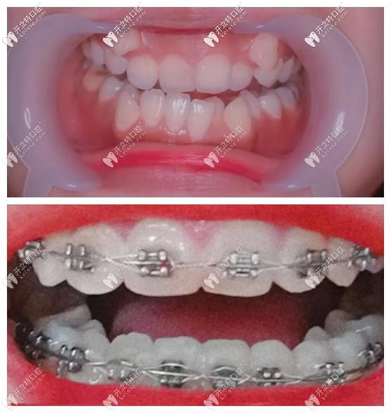 虎牙外凸很难矫正?听说她戴damon自锁牙套5个月虎牙被拉正了