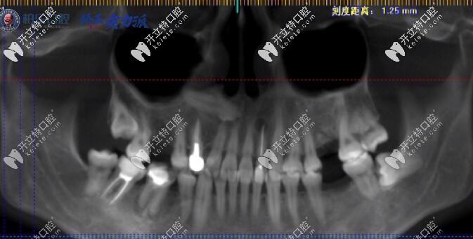 看30岁缺三颗大牙的矫正案例,原来缺牙不是只能做种植牙哦
