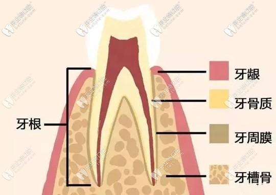 什么是牙周植骨手术