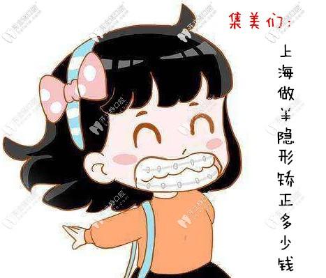 送来上海半隐形矫正牙齿的价格表,各品牌的正畸费用都有哦