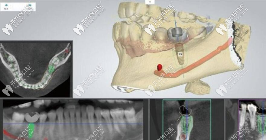 长沙美奥口腔3D数字化导板精准种植