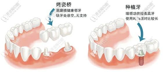 烤瓷牙和种植牙区别