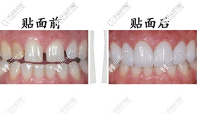 牙齿贴面前后对比图