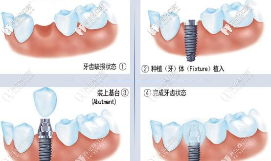 种植牙操作过程