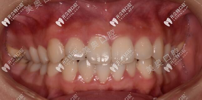 想知道18岁做牙齿矫正要多久吗,这个年龄戴隐形牙套晚不晚