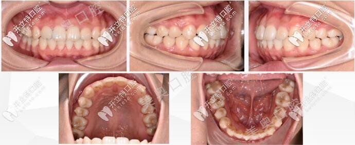 无锡美奥口腔牙齿矫正后的图片