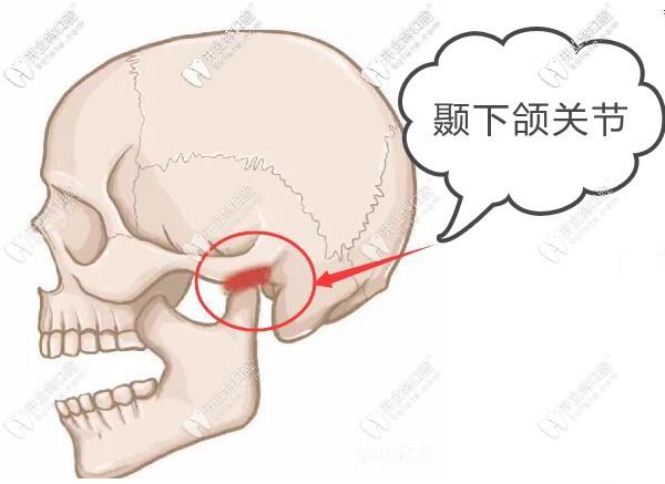 牙齿矫正的拦路虎-颞下颌关节紊乱综合症怎么治疗