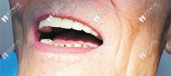 上半口固定种植牙的效果