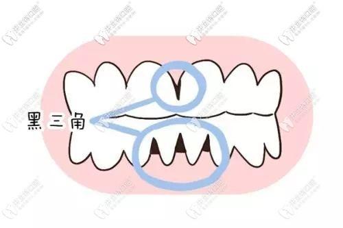 担心牙龈萎缩不能做矫正?来看看我的牙齿矫正效果吧