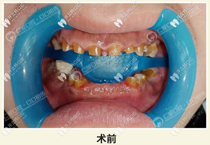 牙齿磨耗严重怎么修复?武汉小伙全口烂牙竟做了28颗全瓷冠