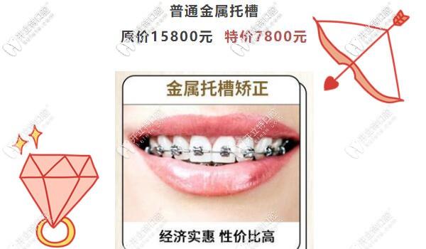 广州圣贝传统金属托槽矫正才7800元啦,暑假正畸不造起来吗?